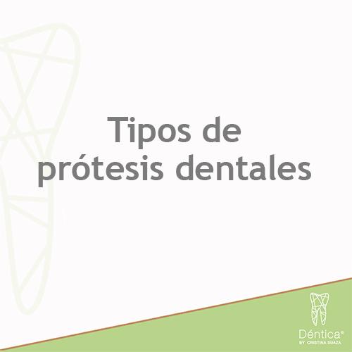 Tipos de Prótesis Dentales [Guía 2020]